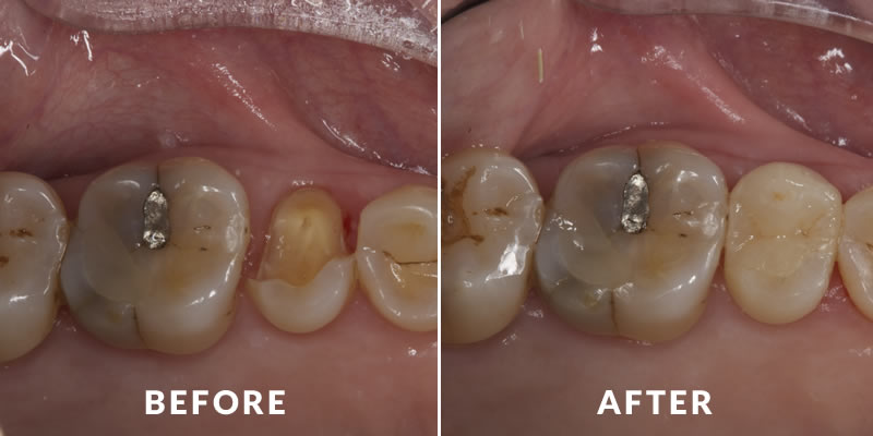 Tooth Repair Before & After